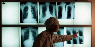 The United Nations will bring together 192 countries for the fourth high-level meeting on tuberculosis in 2018.