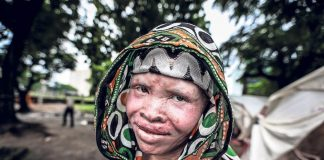 """Albinos in Malawi are killed for the """"gold"""" in their bones."""