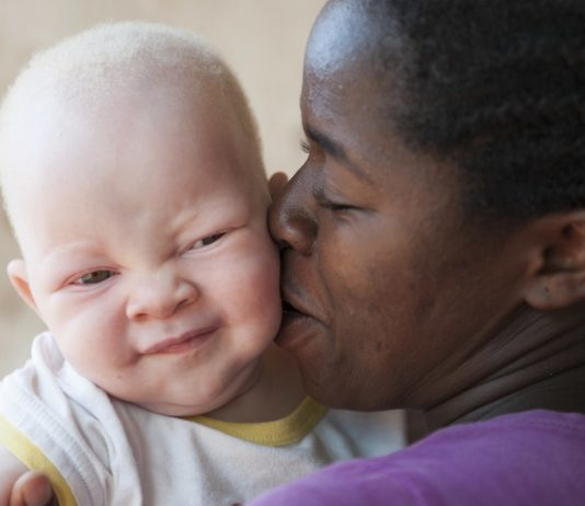 Victims of superstition: The dangers of living with albinism in Africa