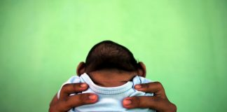 The Zika link: Small heads and brains