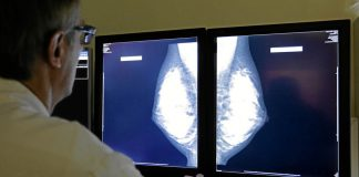 Mammography is still the gold standard of breast screening.