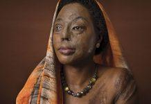 Acid victim Hanifa Nakiryowa founded the Center for Rehabilitation of Survivors of Acid and Burns Violence.